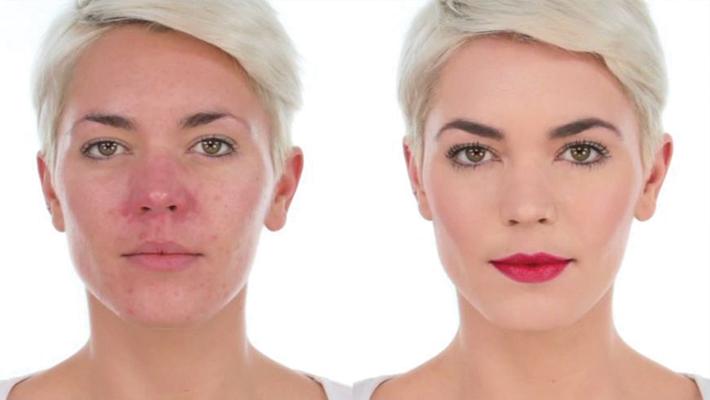 despre-acneea-rozacee