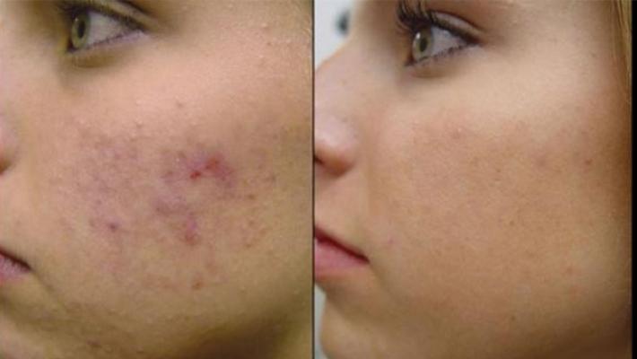 despre-acneea-vulgara